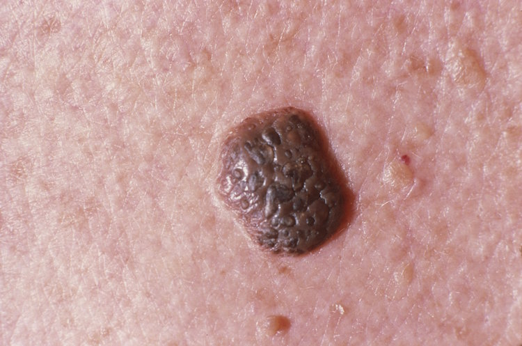 Hpv warts reappearing - Warts on skin in old age, Warts on skin in old age