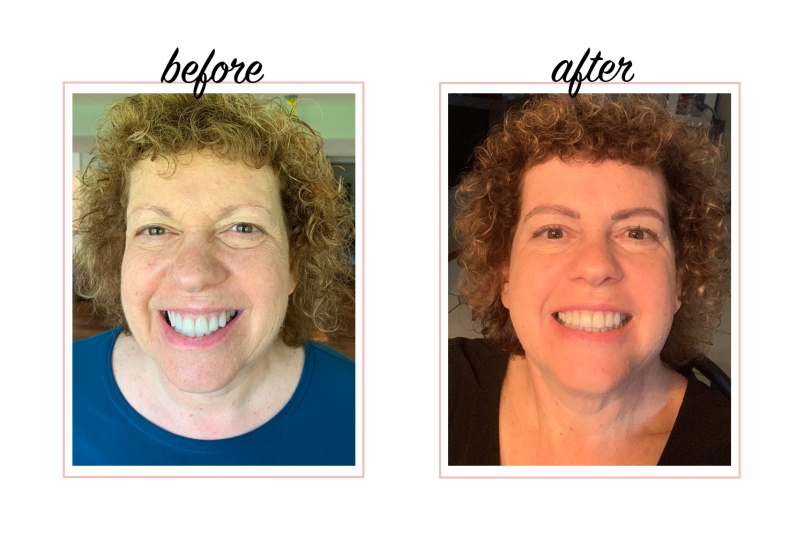 Microblading Before And After Photos For Women Over 50