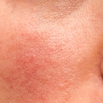 A super close-up shot of a woman's flushed, bumpy skin