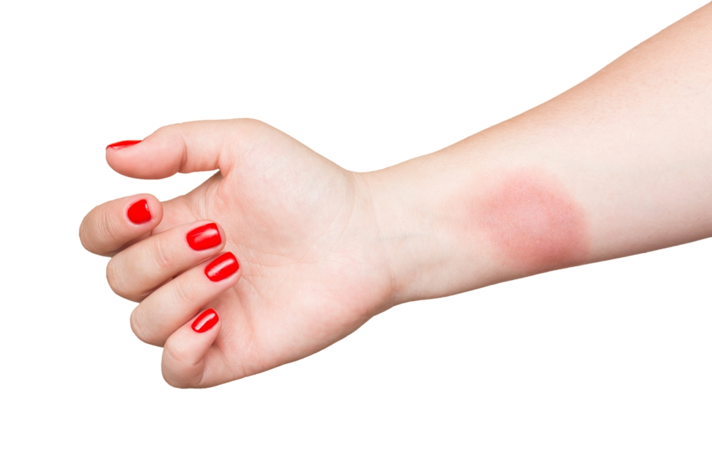 Burn on female hand with red nails isolated on white background.