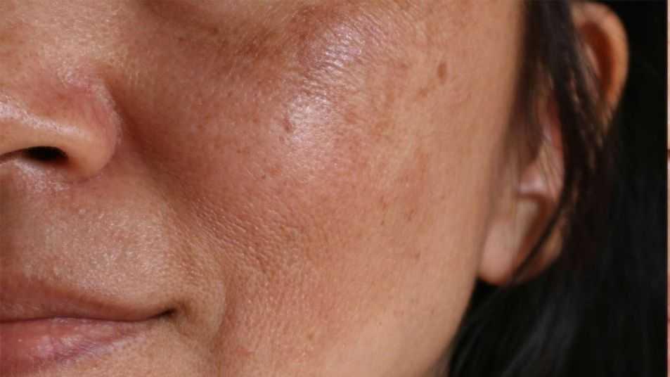 What Is Melasma and How Can You Treat It? - First For Women