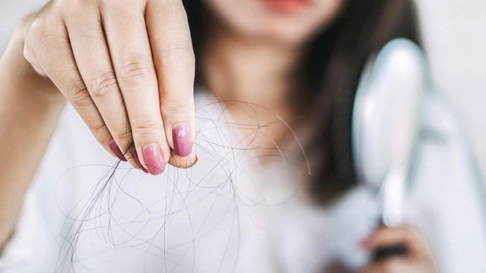 Reversing hair loss story image