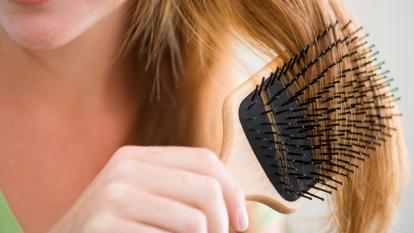 over-brushing-hair-loss